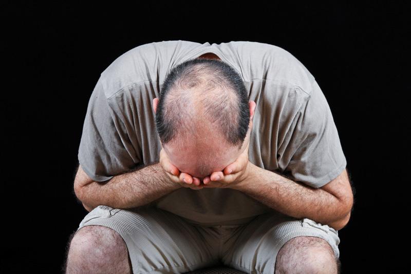 Lỗi lo lắng tóc rụng hói đầu làm bạn băn khoăn mất ăn mất ngủ